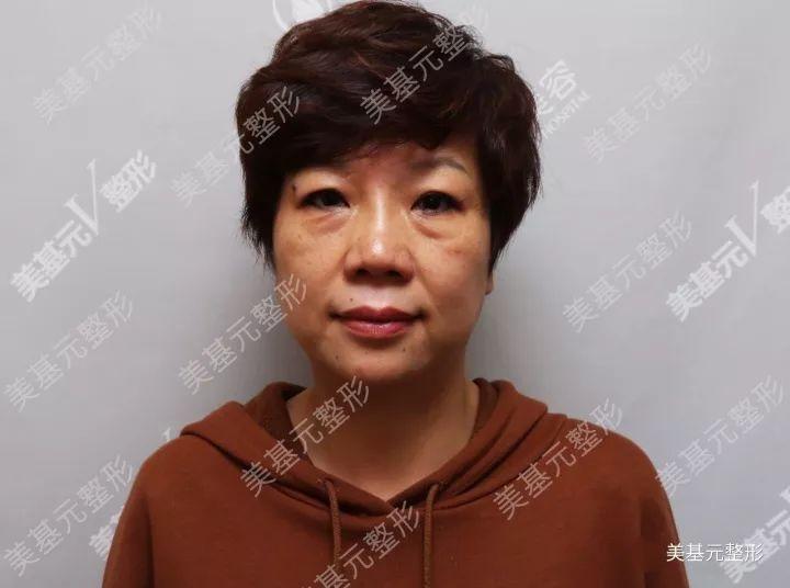 【真人案例】武汉美基元整形直播祛眼袋!