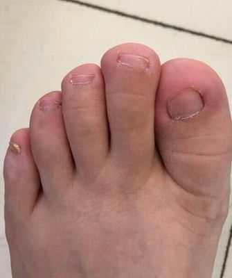 脚指甲往肉里长怎么办?我的亲身治愈经历