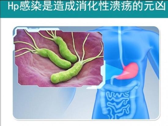 舒克幽益生菌成为幽门螺杆菌标准三联四联抗生素必要的补充方案