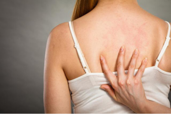 皮肤过敏三大止痒误区,数数你占了几条?