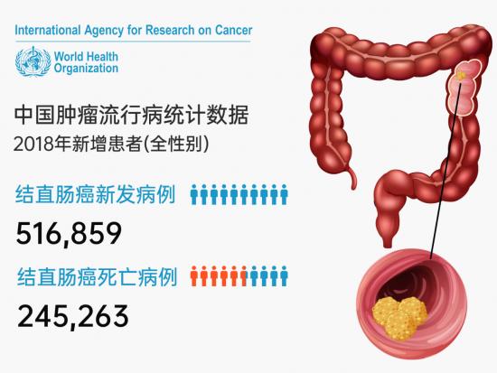 越来越多的年轻人正在患上结肠癌,为什么?