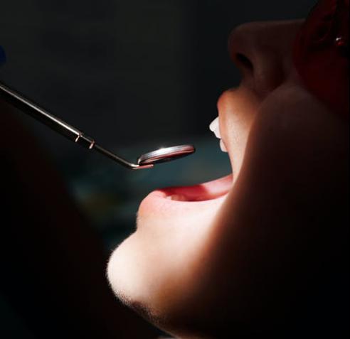口腔溃疡是预防or治疗,草方牙膏盘个明明白白